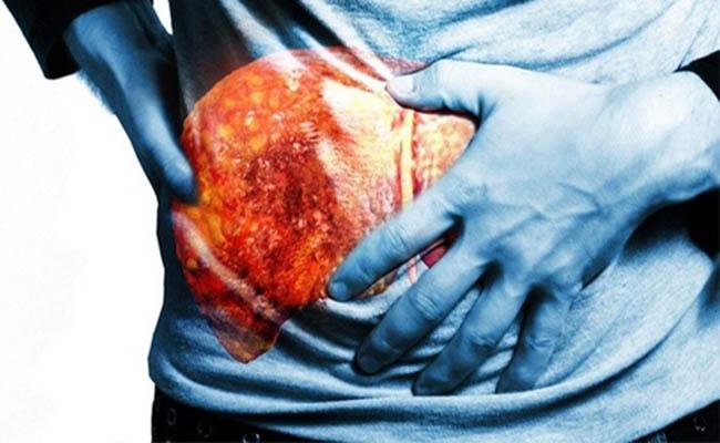 Điều trị ung thư gan bằng hoàng liên ô rô