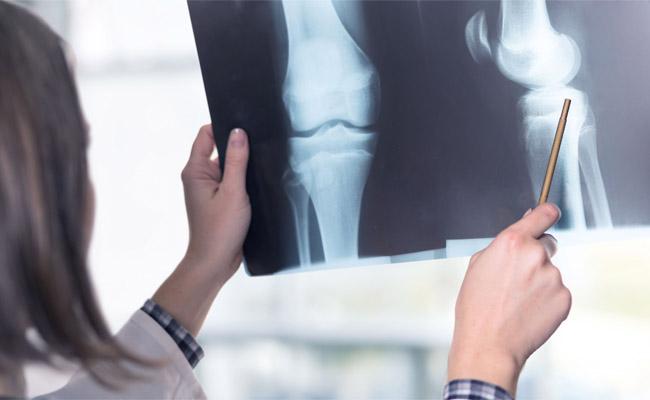 Viêm khớp gối được chẩn đoán qua biểu hiện lâm sàng và kết quả xét nghiệm cận lâm sàng