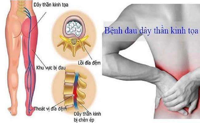 Thuốc nam chữa đau thần kinh tọa hiệu quả