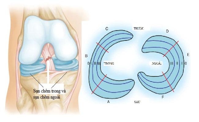 Rách sụn chêm là chấn thương phổ biến mà nhiều người gặp phải